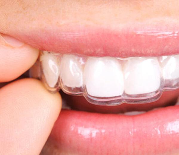 Ortodoncia las Rozas