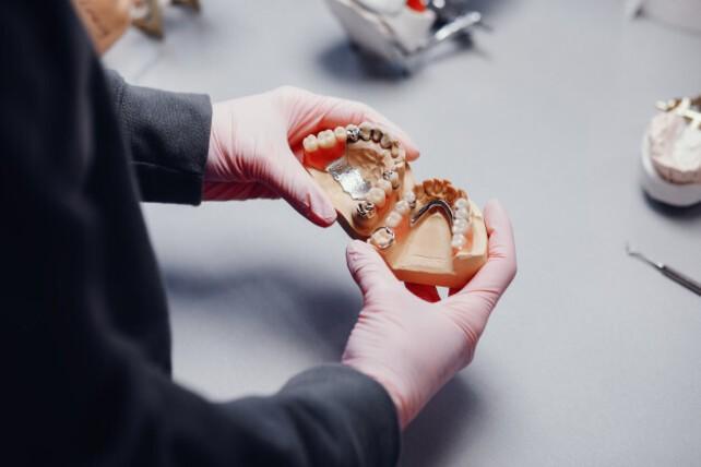 Cómo influye la calidad de un implante dental en su durabilidad