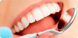 estetica dental en las rozas