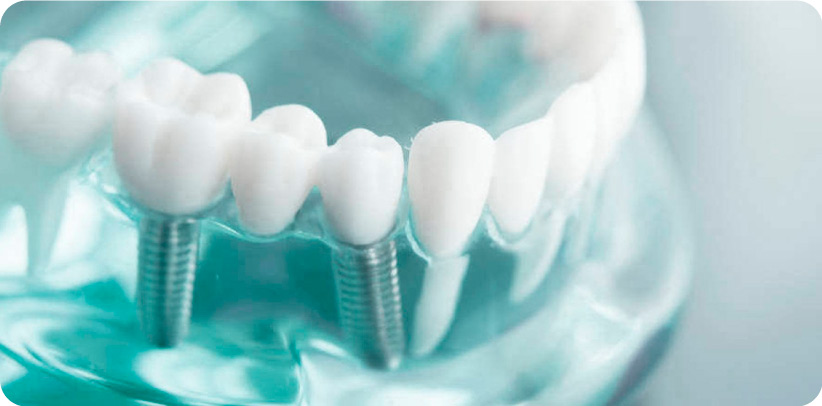 implantes dentales las rozas