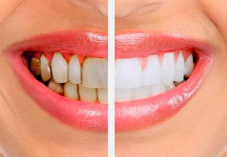 periodoncia en las rozas