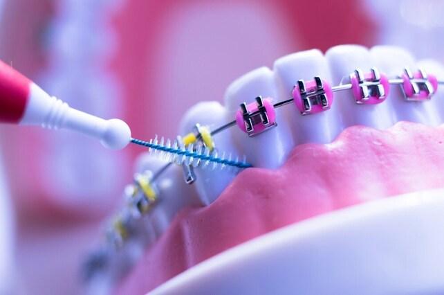 Características de la ortodoncia en adultos