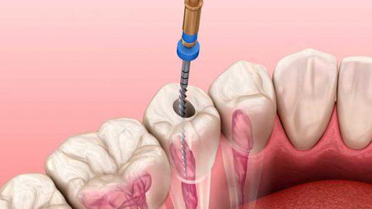 Cuáles son los casos para realizar una endodoncia
