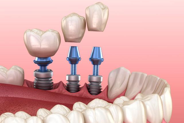 ¿Qué es la cirugía de implantes dentales?