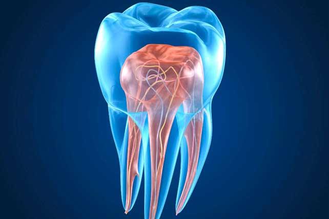 Situaciones para recurrir auna endodoncia