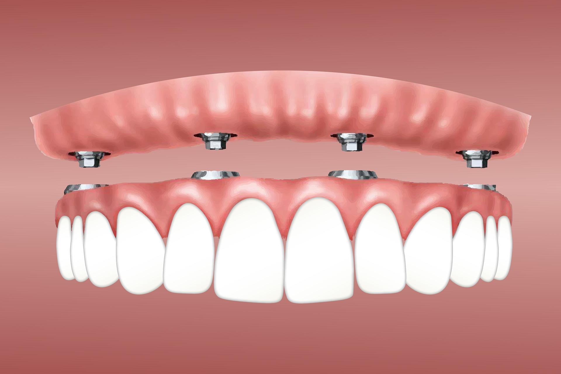 Procedimiento y fases de un implante dental