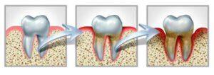 Daños que provoca la periodontitis