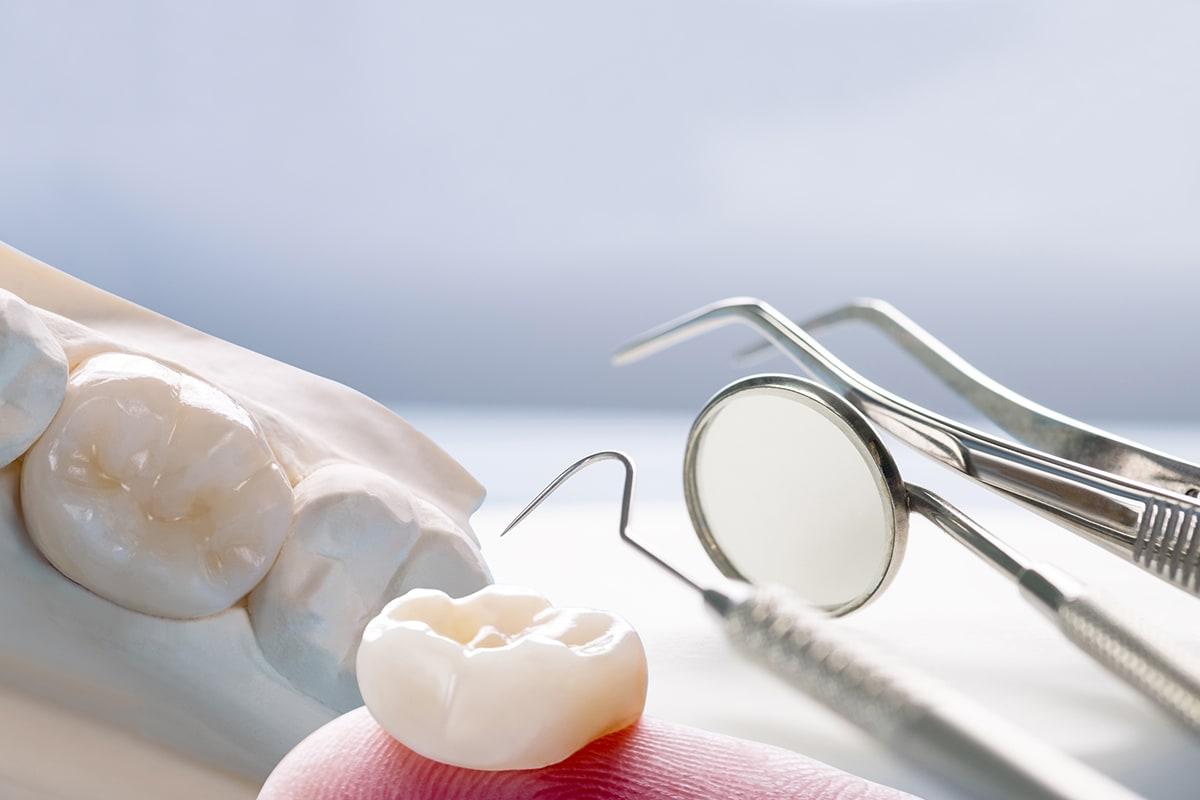 dentadura postiza, cuándo utilizarla