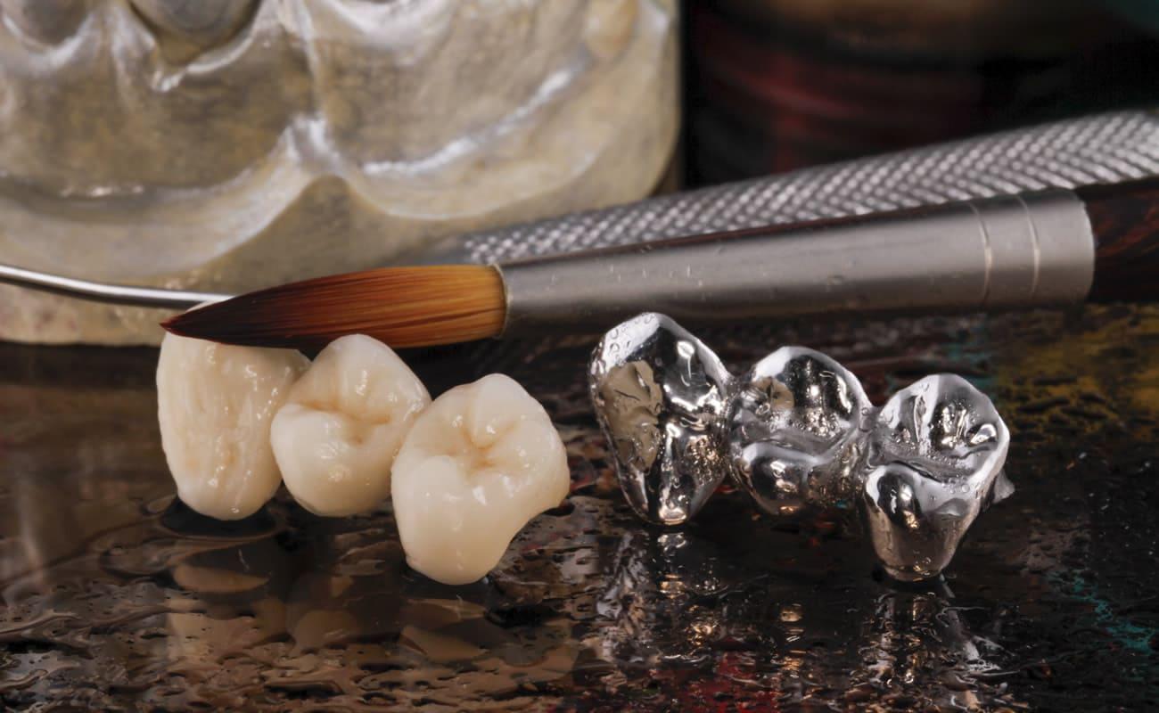 tipos de coronas e implantes dentales en las rozas