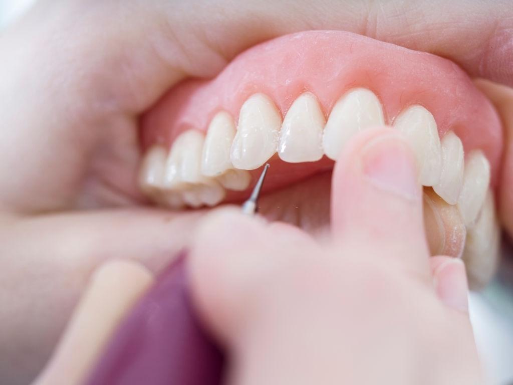 implantes dentales conexion interna y externa