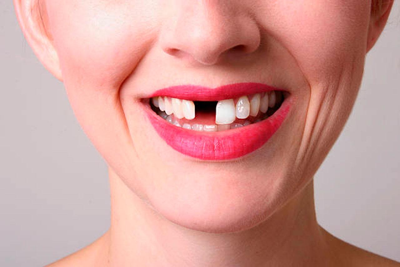 perdida-de-una-pieza-dental