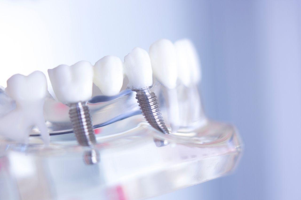 Qué consecuencias pueden tener unos implantes de mas o menos calidad